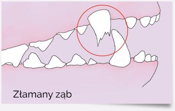 Złamany ząb