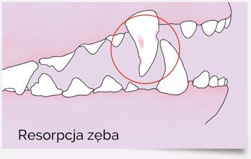 Resorpcja zęba